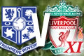 Tranmere v Liverpool XI